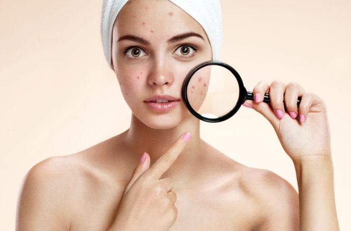 trattamento sebo equilibrante acne